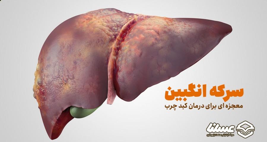 درمان کبد چرب با سرکه انگبین