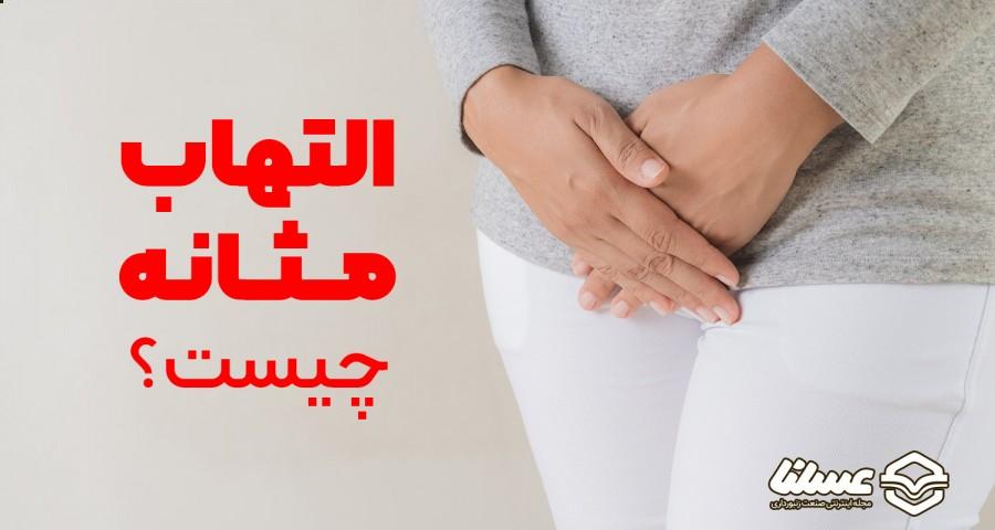 التهاب مثانه چیست؟