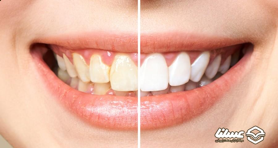 عسل برای رفع پلاک دندان