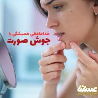 درمان جوش صورت با ژل رویال + کدام روش مصرف بهتر است؟