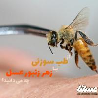 طب سوزنی زنبور عسل؛ آنچه باید در مورد زهردرمانی به روش طب سوزنی بدانیم