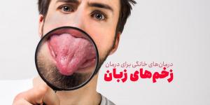روش های خانگی برای درمان زخم ایجاد شده روی زبان