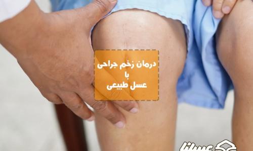 معجزه عسل برای درمان زخم جراحی